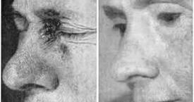 Cancer de la peau - Oscillateur à ondes multiples de George Lakhovsky