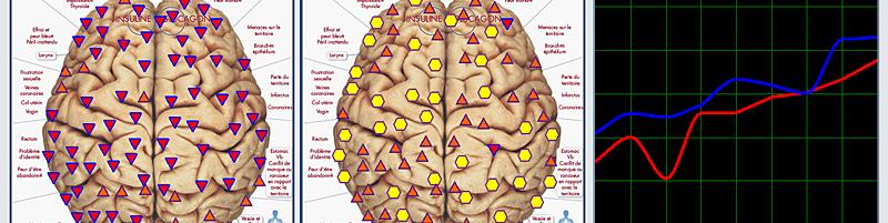 biorésonance - maux de tête