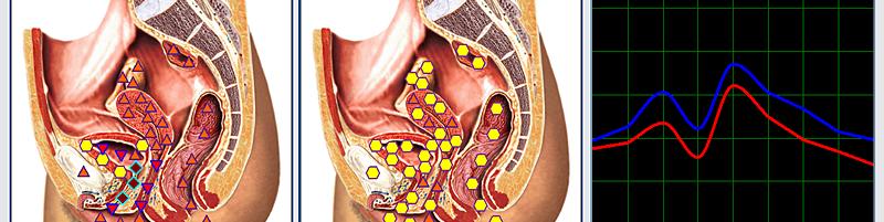 biorésonance - infections urinaires